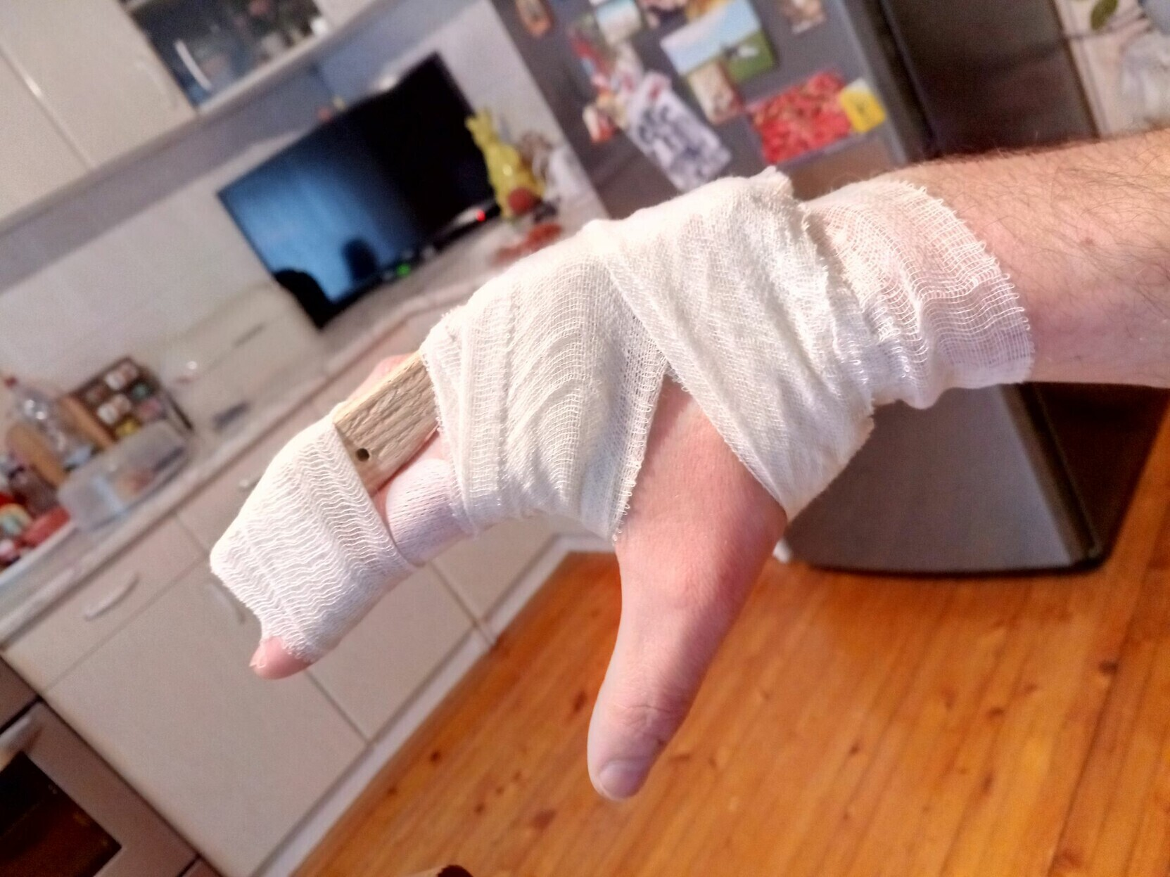Finished splint, now mostly hidden under the bandage holding to finger and hand. There's a gap where the bandaid is covering the wound to avoid pressure on that area.